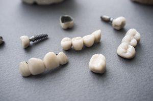 dental implants on a table