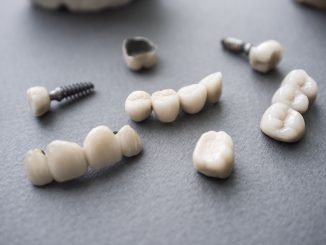 dental implants on a table