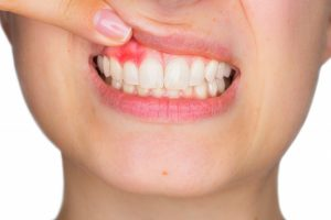 inflamed gum