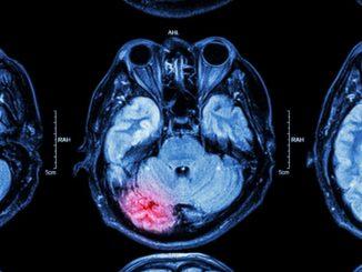 neurological impairment xray of brain